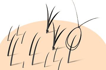 「増毛とは」の画像検索結果